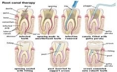 Kind Of Dental Surgery