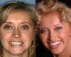 dental veneers before after