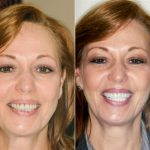 Mary dental veneers