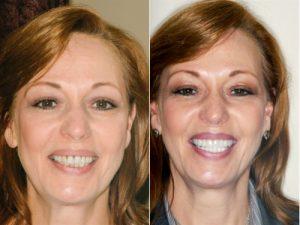 Mary dental veneers