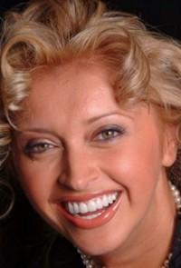 Oksana Dental Veneers