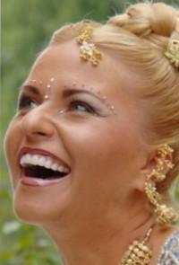 Julia-dental-veneers