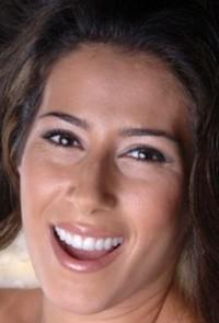 Irina dental veneers