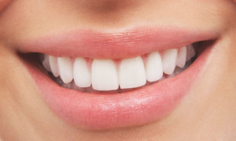 Dental Porcelain Veneers