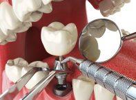 dental implant Staten Island