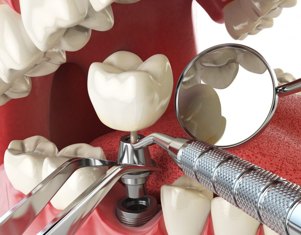 dental implant Staten Island