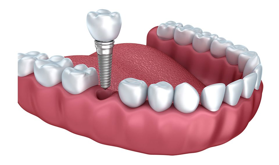 dental implant procedure Staten Island