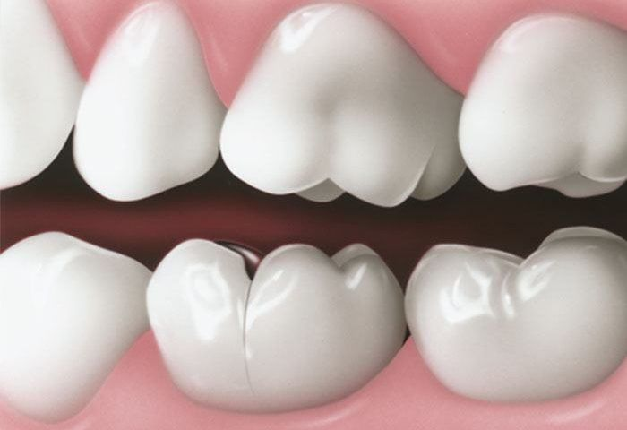 The Most Common Dental Problems and Their Treatments - Sola