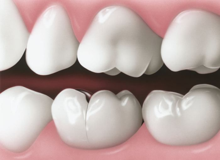 The Most Common Dental Problems and Their Treatments