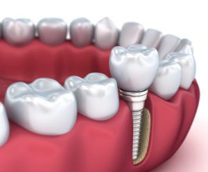 More About Dental Implants