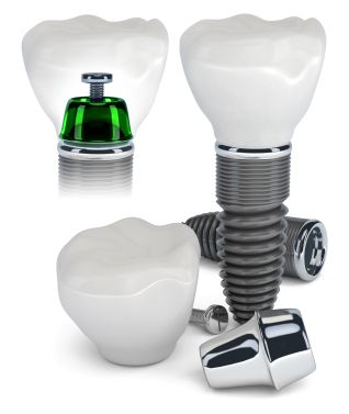 Dental Implant is a missing tooth alternative