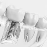 dental implant Sola Dental Spa