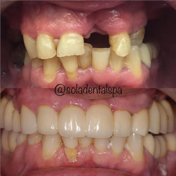 Implants and bridges before and after
