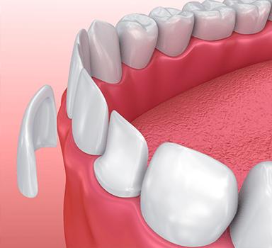 Tooth-veneer