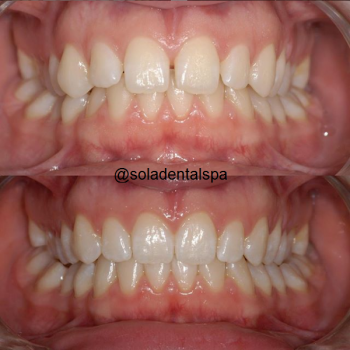invisalign before and after 3
