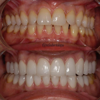 veneers before and after 3